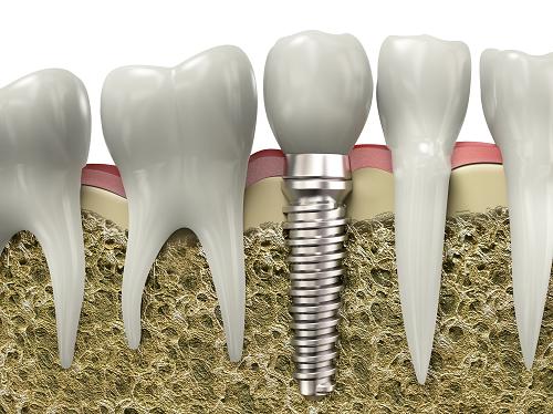 Dental Implants Santa Cruz